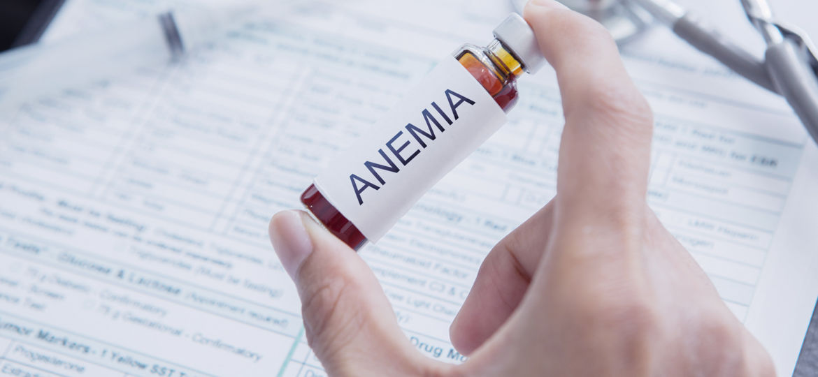 icd 10 Codes, Treatment of Anemia, Symptoms of Anemia, anemia signs, aplastic anemia