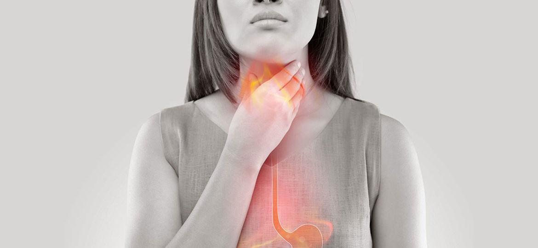 ICD-10 Codes for GERD, erosive GERD, non-erosive GERD, Gastroesophageal reflux disease, acid reflux, icd 10 for GERD, esophagus, Symptoms of GERD, Treatment of GERD, chronic heartburn,
