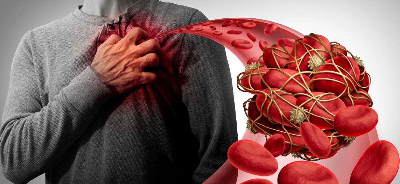 Atrial Fibrillation, ICD-10 Codes for AF, Symptoms of Atrial Fibrillation, Causes of AF, Atrial fibrillation treatment, cardioversion, Paroxysmal atrial fibrillation