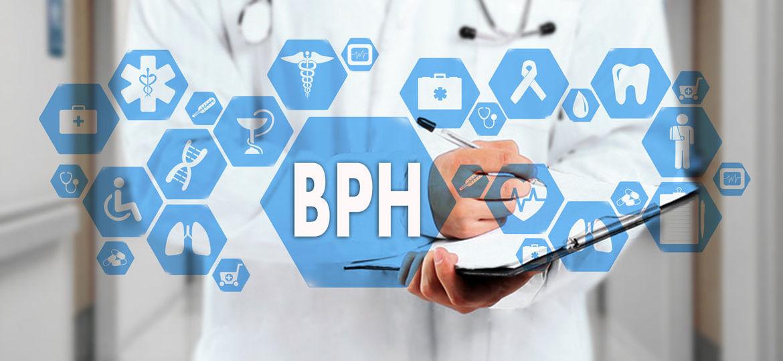 Benign prostatic hyperplasia, Treatment for BPH, ICD-10 Codes for BPH, Nodular prostate, Symptoms of BPH, BPH Benign