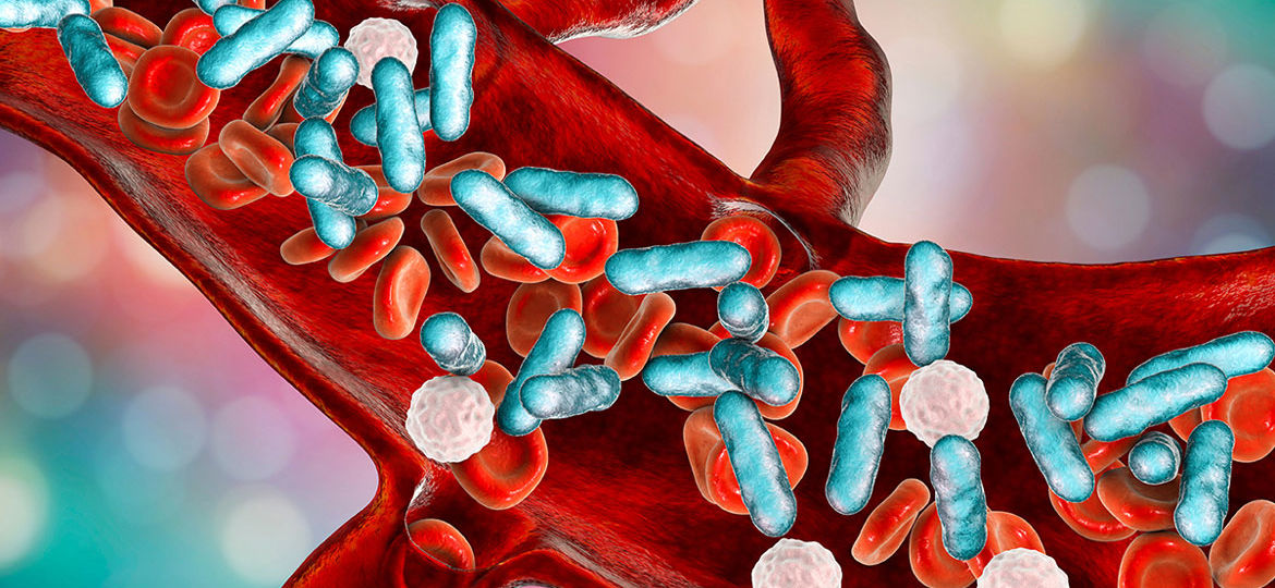ICD-10 codes for Sepsis, Symptoms of Sepsis, Treatment for Sepsis, treatment sepsis, cause of sepsis, medication of sepsis