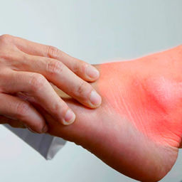 ICD-10 codes for gout, symptoms of gout, Treatment for gout, Idiopathic gout, Lead-induced gout, Drug-induced gout