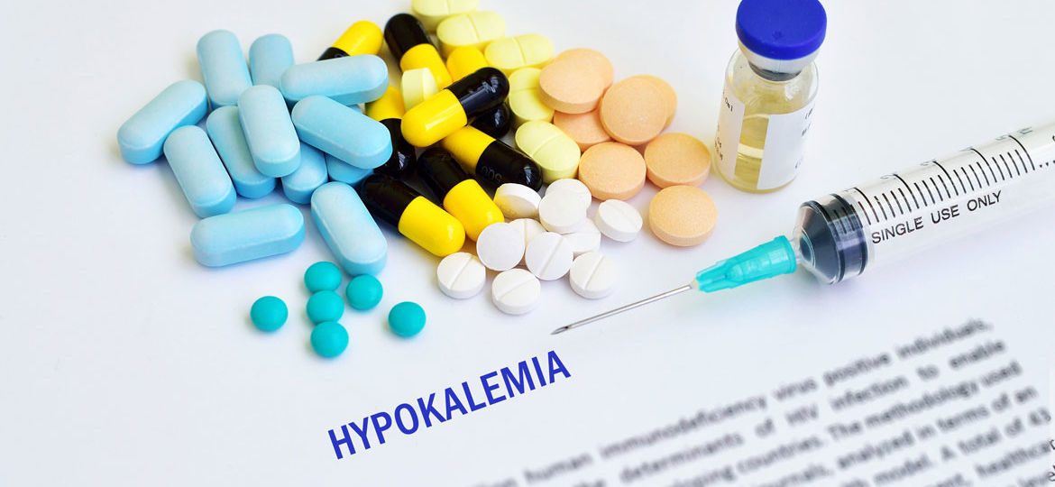 Hypokalemia, symptoms of low potassium, symptoms of hypokalemia, treatment of hypokalemia, treatment for high potassium, icd 10 code for hypokalemia, Hypokalemia of newborn