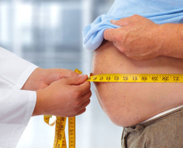 Causes of Obesity, Treatment for Obesity, ICD-10 codes for obesity